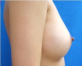 シリコンバッグによる豊胸術(術後1ヶ月)の症例写真[アフター]
