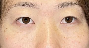 品川美容外科 渋谷院の目元整形・クマ治療の症例写真[アフター]
