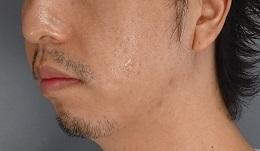 ヒアルロン酸 顎 ボリューマの症例写真[ビフォー]