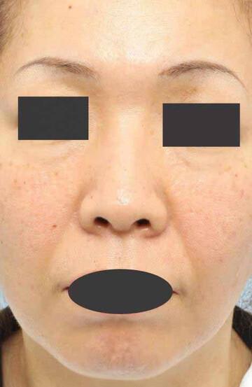 よだ形成外科クリニックの顔のしわ・たるみの整形(リフトアップ手術)の症例写真[ビフォー]