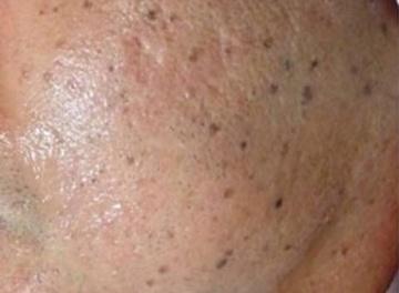 エストクリニックのシミ取り・肝斑・毛穴治療の症例写真[ビフォー]
