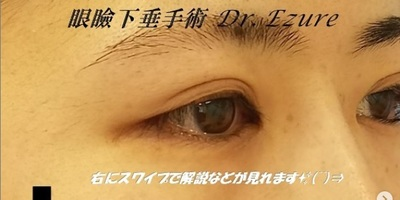 MD式眼瞼下垂+目頭・目尻切開/1ヶ月後の症例写真[ビフォー]