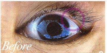 表参道スキンクリニックのホクロ除去・あざ治療・イボ治療の症例写真[ビフォー]
