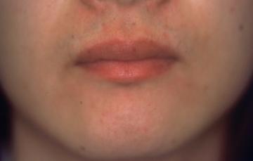 平岡皮膚科スキンケアクリニックの医療レーザー脱毛の症例写真[アフター]