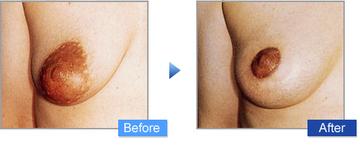 コムロクリニック(旧コムロ美容外科)の乳首・乳輪の整形の症例写真