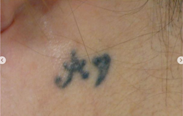広島プルミエクリニックのタトゥー除去(刺青・入れ墨を消す治療)の症例写真[ビフォー]