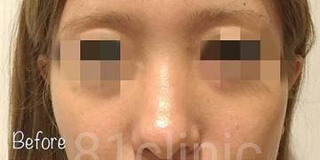 81clinicの鼻の整形の症例写真[ビフォー]