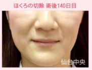 仙台中央クリニックのホクロ除去・あざ治療・イボ治療の症例写真[アフター]