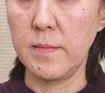 新宿ビューティークリニックのシワ・たるみ(照射系リフトアップ治療)の症例写真[ビフォー]