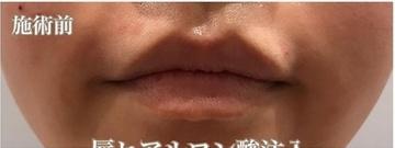 西宮SHUHEI美容クリニックの口元・唇の整形の症例写真[ビフォー]