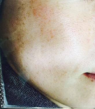 院内で人気のシミ取り治療【フォトシルク・プラス】の症例写真[ビフォー]