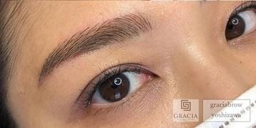 GRACIA clinic(グラシアクリニック)のアートメイクの症例写真[アフター]