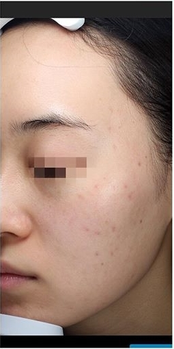 La Clinique Ginza(ラ クリニック銀座)のニキビ治療・ニキビ跡の治療の症例写真[アフター]