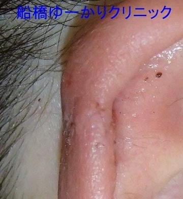 医療法人社団茉悠乃会 船橋ゆーかりクリニックの症例写真[アフター]