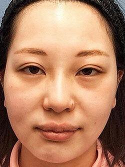埋没法、目頭切開、鼻施術、ヒアルロン酸注入の症例写真[ビフォー]