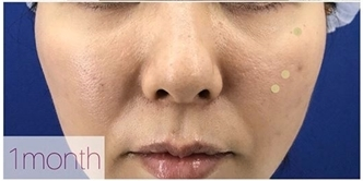 La Clinique Ginza(ラ クリニック銀座)の目元の整形、くま治療の症例写真[アフター]