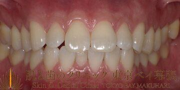 肌と歯のクリニック 東京ベイ幕張の審美歯科の症例写真[アフター]