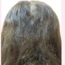 円形脱毛症の毛髪再生治療[アフター]