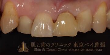 肌と歯のクリニック 東京ベイ幕張のインプラントの症例写真[アフター]