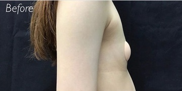 銀座ゼロクリニックの豊胸・胸の整形の症例写真[ビフォー]