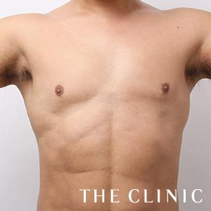 THE CLINIC(ザ・クリニック)の脂肪吸引の症例写真[アフター]
