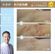 湘南美容クリニック新橋銀座口院のわきが手術・多汗症治療の症例写真