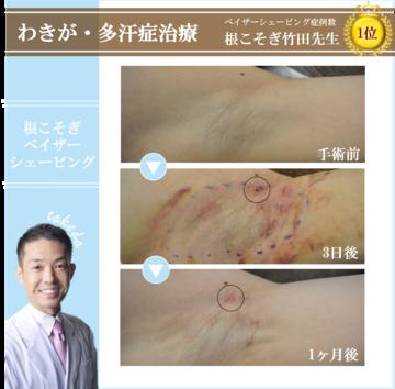 湘南美容クリニック 新橋銀座口院のわきが手術・多汗症治療の症例写真