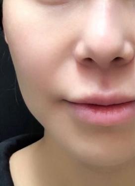 大西皮フ科形成外科医院の顔のしわ・たるみの整形の症例写真[ビフォー]
