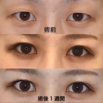 湘南美容クリニック名古屋 栄院の目・二重の整形の症例写真