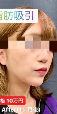 ルラ美容クリニック 高田馬場院の脂肪吸引の症例写真[アフター]