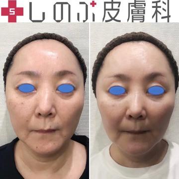 しのぶ皮膚科の顔のしわ・たるみの整形の症例写真
