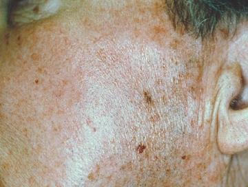 平岡皮膚科スキンケアクリニックのシミ治療(シミ取り)・肝斑・毛穴治療の症例写真[ビフォー]