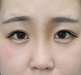 オザキクリニックLUXE新宿の目・二重の整形の症例写真[ビフォー]