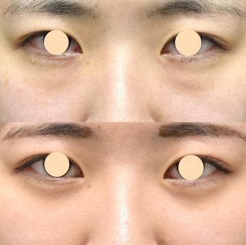 ウェンデルクリニックの目元の整形、くま治療の症例写真