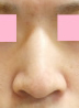 の鼻の整形の症例写真[ビフォー]