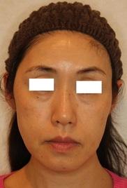 ザ ナチュラルビューティークリニック四ツ橋院の顔のしわ・たるみの整形(リフトアップ手術)の症例写真[ビフォー]