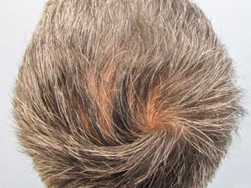 あやべクリニックの薄毛治療の症例写真[ビフォー]