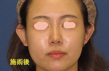 トキコクリニック 京都四条院の鼻の整形の症例写真[アフター]
