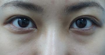 ガーデンクリニックの目元の整形、くま治療の症例写真[ビフォー]