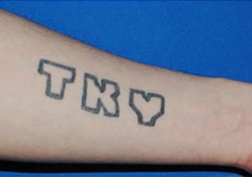 東京イセアクリニック銀座院のタトゥー除去(刺青・入れ墨を消す治療)の症例写真[ビフォー]