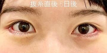 ルラ美容クリニック高田馬場院の目・二重の整形の症例写真[アフター]