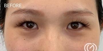 GLANZ CLINIC(グランツクリニック)の目・二重の整形の症例写真[ビフォー]