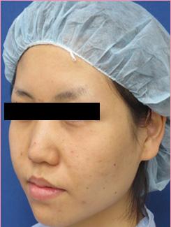 ■隆鼻術+鼻中隔延長+耳介軟骨移植の症例写真[ビフォー]