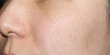 SELECT CLINIC (セレクトクリニック)のニキビ治療・ニキビ跡の治療の症例写真[ビフォー]