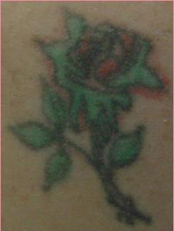 城本クリニックのタトゥー除去(刺青・入れ墨を消す治療)の症例写真[ビフォー]