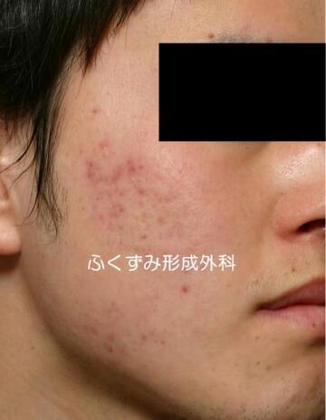 ふくずみ皮フ科形成外科のニキビ治療・ニキビ跡の治療の症例写真[ビフォー]