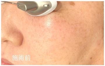アーククリニックのシミ取り・肝斑・毛穴治療の症例写真[ビフォー]