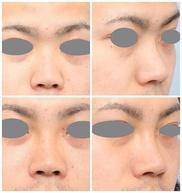 よだ形成外科クリニックの鼻の整形の症例写真