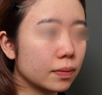 オザキクリニックのシミ取り・肝斑・毛穴治療の症例写真[ビフォー]