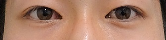 TCB 東京中央美容外科の目元の整形、くま治療の症例写真[ビフォー]